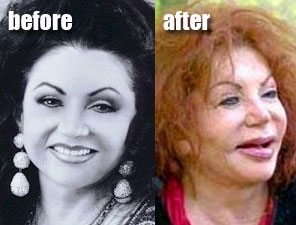 Celebrity Before And After Plastic Surgery Disasters